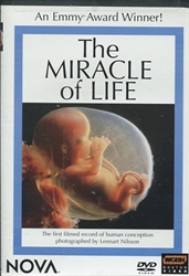 Miracle of Life - DVD